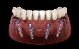 Что такое метод Алл он 4 имплантация и протезирование