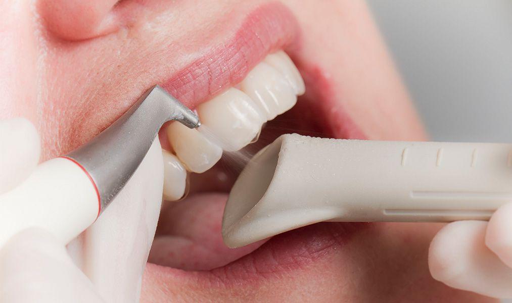 Что собой представляет ультразвуковая чистка зубов?