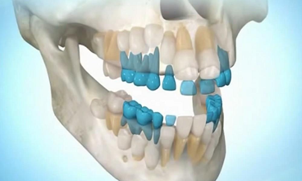 Молочные зубы человека