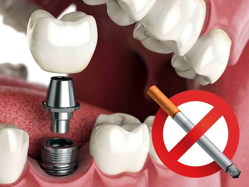 Имплантация зубов – можно ли курить?